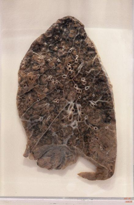 From the 1918 influenza pandemic, a pneumonia-ridden lung at the National Museum of Health and Medicine in Silver Spring, Maryland.