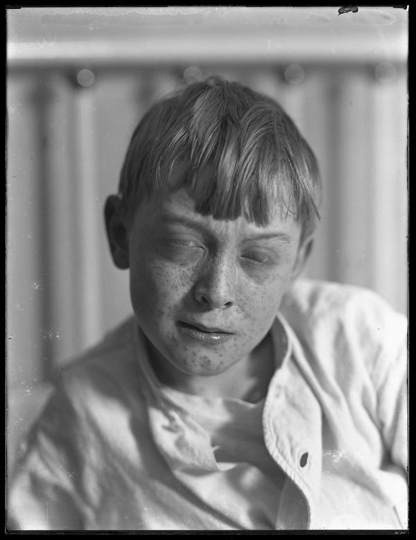 William Gray Hassler with measles, circa 1913