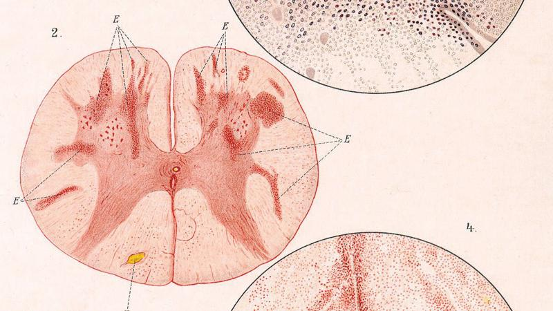 Diagrams showing pox infections in cross sections of the brain and in the cells of the spine